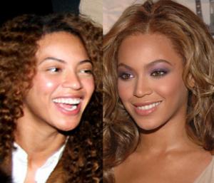 Beyonce antes y después cirugias