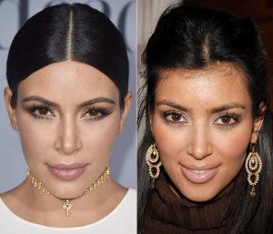 Kim-Kardashian operada