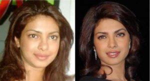 Priyanka-Chopra sin maquillar