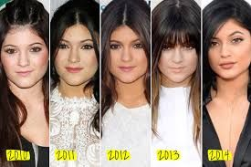 kylie-jenner-antes y despues