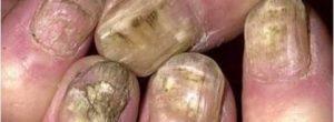 Hongos en las uñas