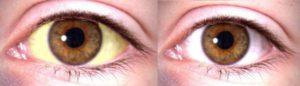 manchas blancas en las uñas cirrosis