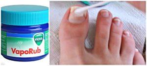 tratamientos médicos hongos en las uñas