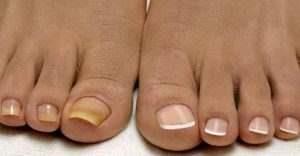 signos de hongos en las uñas