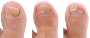 tipos de hongos en las uñas