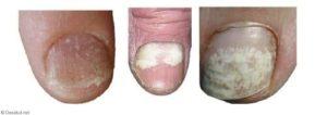 tipos d emanchas ne las uñas