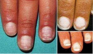 tipos de manchas blancas en las uñas