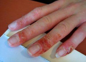 alergias al esmalte