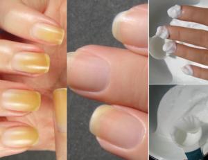 causas uñas amarillas