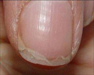 causas uñas frágiles