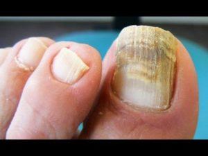 ciclochem uñas
