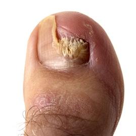 ciclochem uñas tratamiento