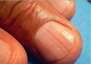 enfermedades de las uñas estrias