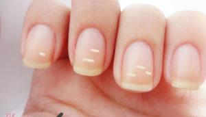 enfermedades de las uñas leuconiquia