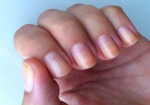 enfermedades de las uñas amarillas
