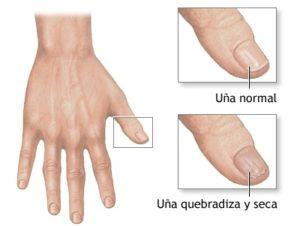 productos para uñas quebradizas