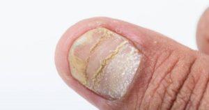 psoriasis de uñas preguntas frecuentes