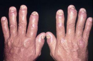 psoriasis en las uñas causas