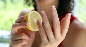 remedios caseros uñas amarillas
