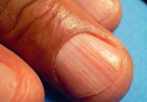 uñas estriadas sintomas