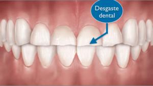 uñas mordidas desgaste dental